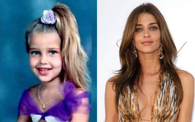 Antes e depois de Ana Beatriz Barros